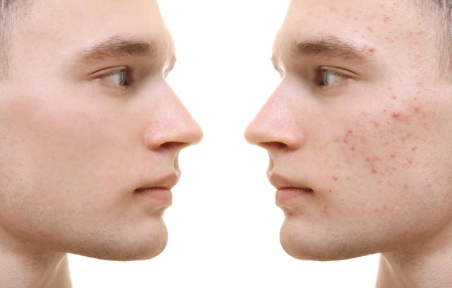 before and after photos of a man who has undergone acne therapy treatments
