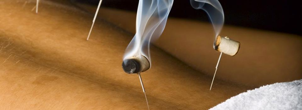 Needles stuck in someone's lower back with smoking things attached. In Bergen, acupuncture is an unmatched natural pain management tool.