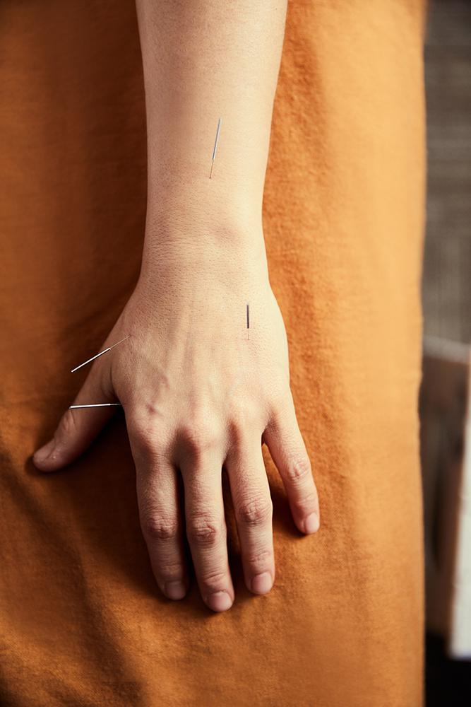 hand with acupuncture needles