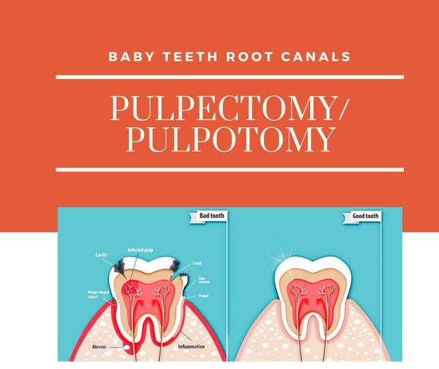 molar incisor hypoplasia(3).png