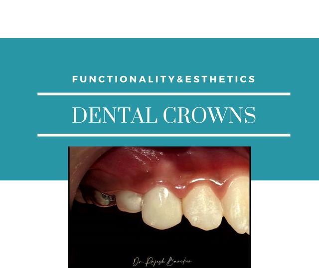 molar incisor hypoplasia(12).png