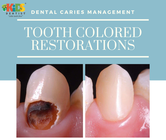 molar incisor hypoplasia(1).png
