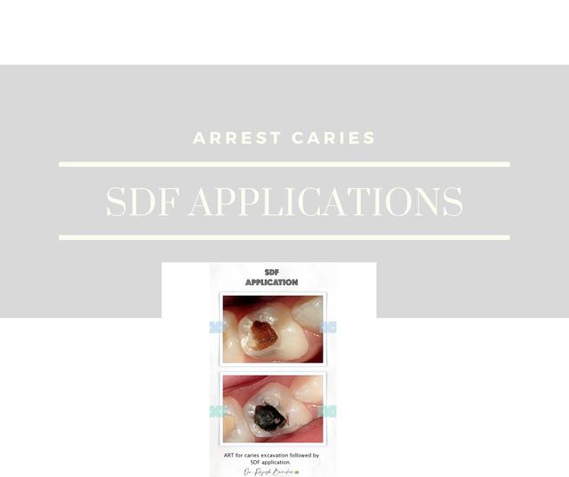 molar incisor hypoplasia(8).png