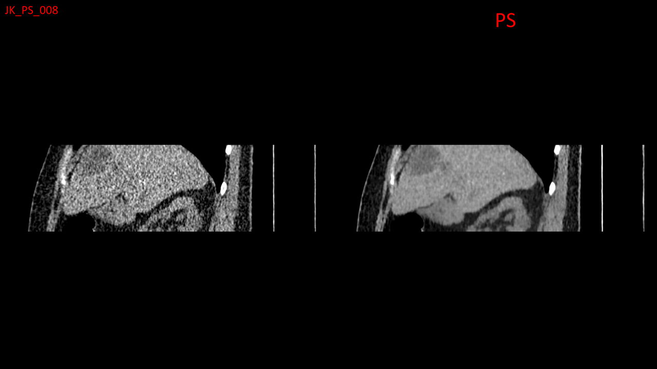 Image of a safe CT scan with high quality imaging because of PixelShine technology.