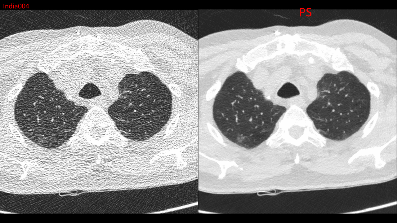 Image of a low-dose radiation scan of a torso for patient safety CT scanning.