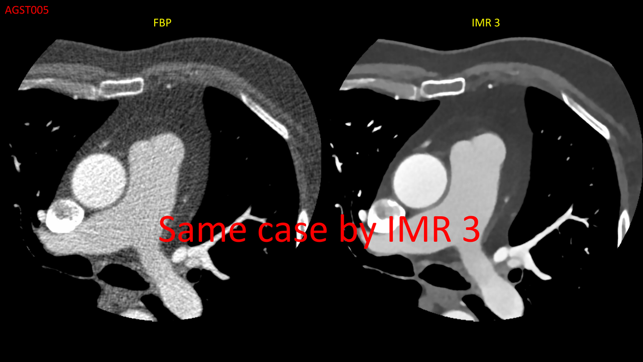 Image of a patient safety CT scan using noise-reduction technology.