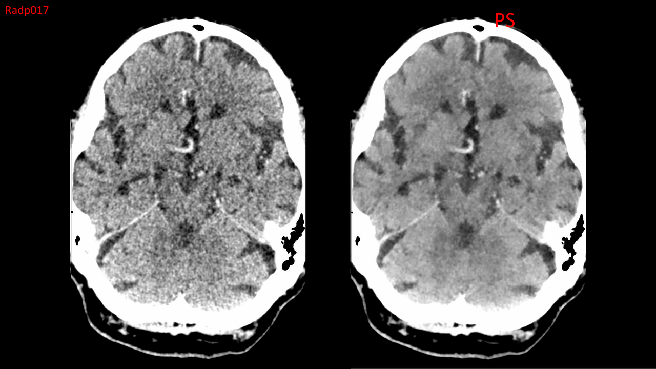 Image of a brain scan using noise reduction CT scan technology for better imaging.