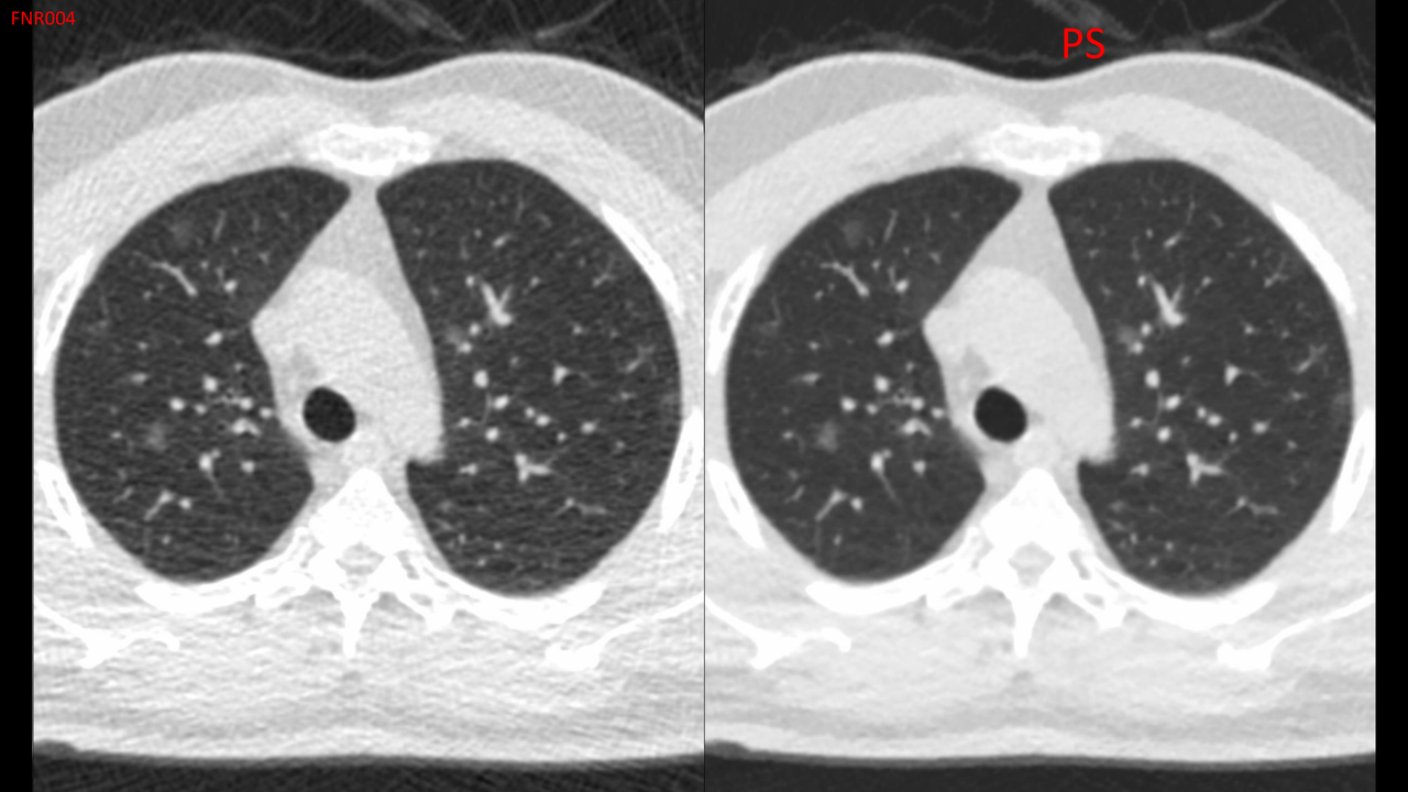 Image of a scan that uses patient safety CT scans with noise reduction software.