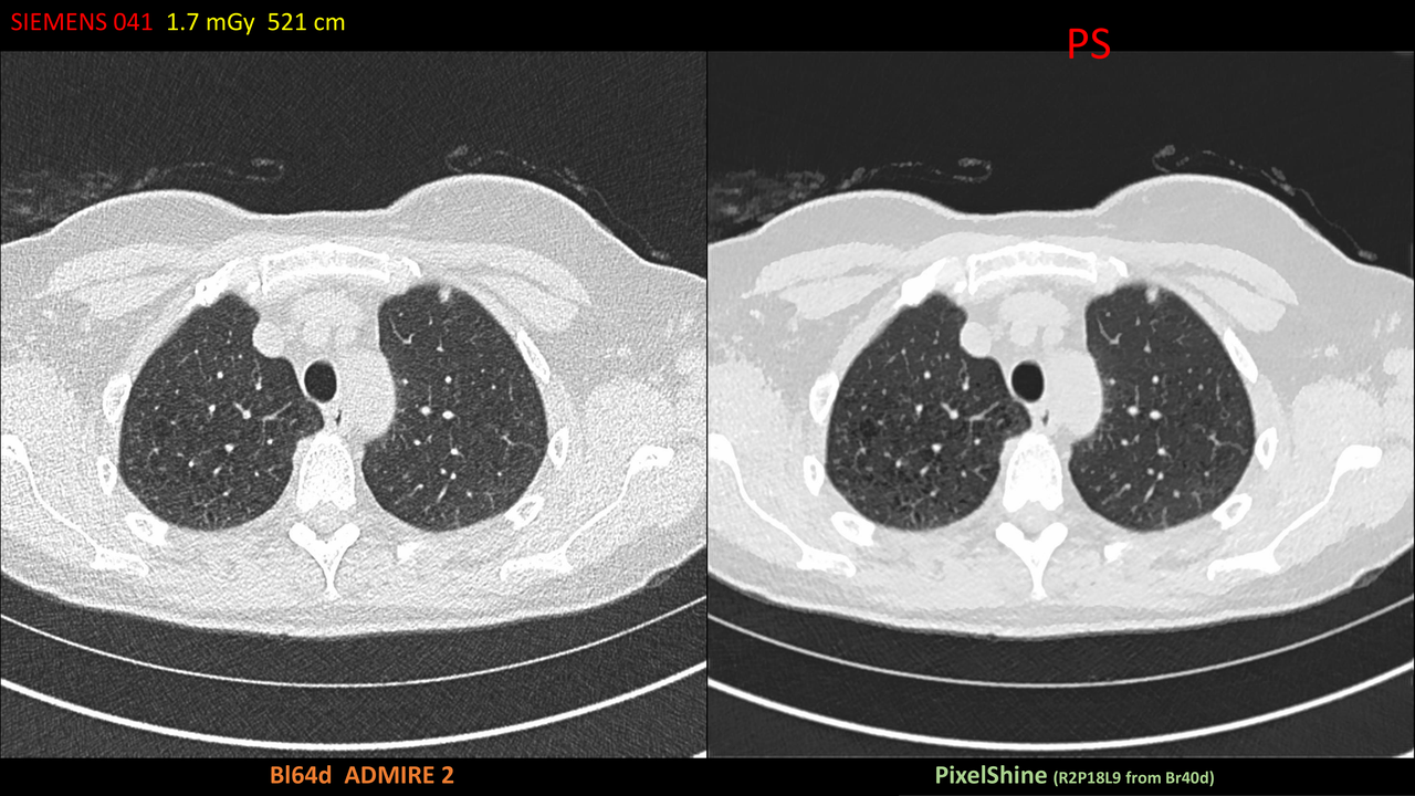 Image of a safe CT scan using PixelShine technology.
