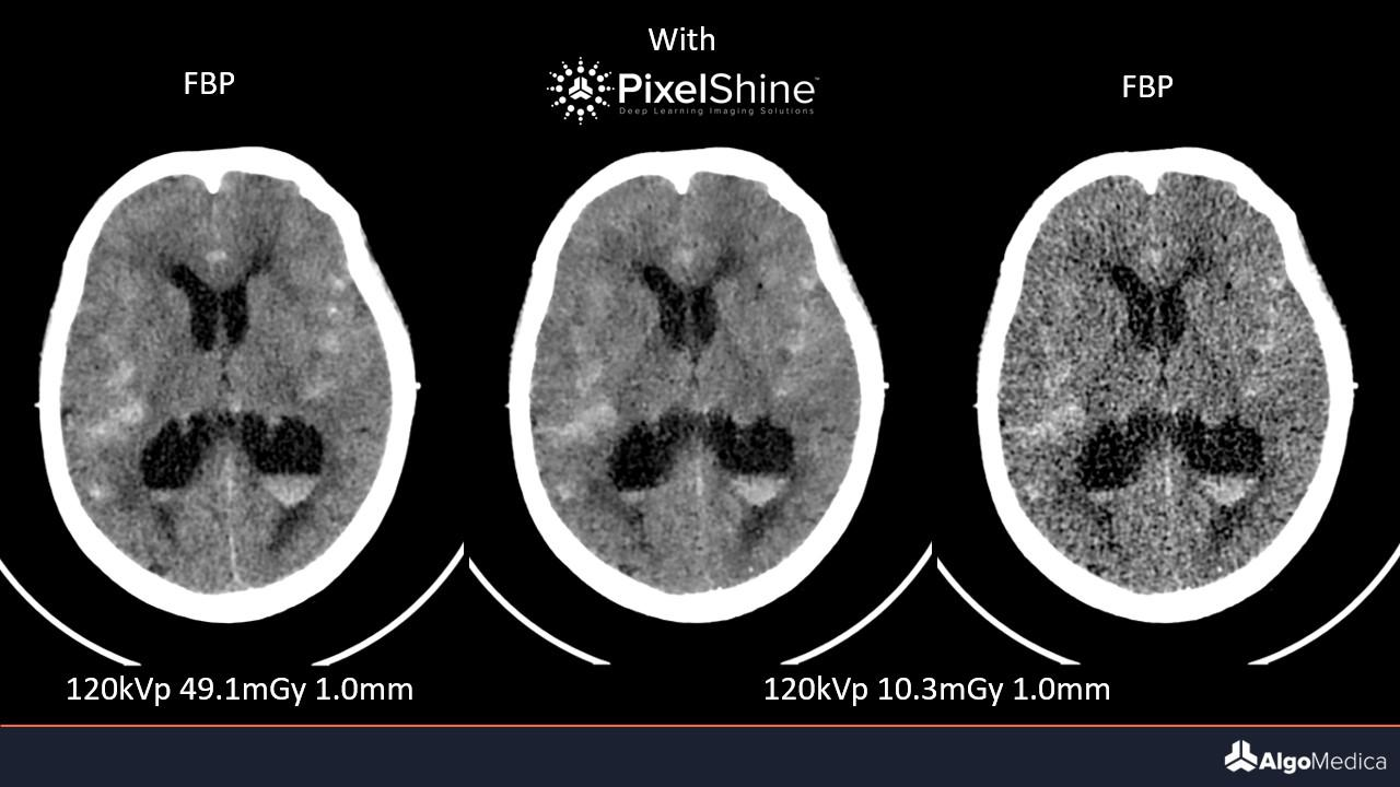 Image of three brain scans using low radiation CT scan from AlgoMedica in Sunnyvale, CA.