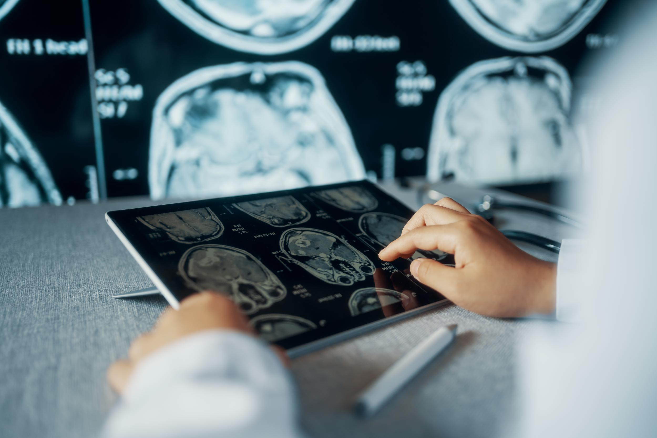 Image of someone looking at imaging from a low radiation CT scan.