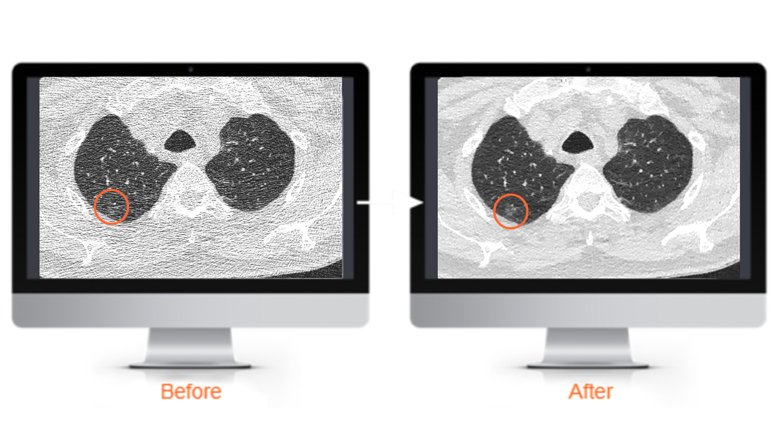 Image of two computers showing the comparison of traditional imaging and AlgoMedica deep learning reconstruction technology.