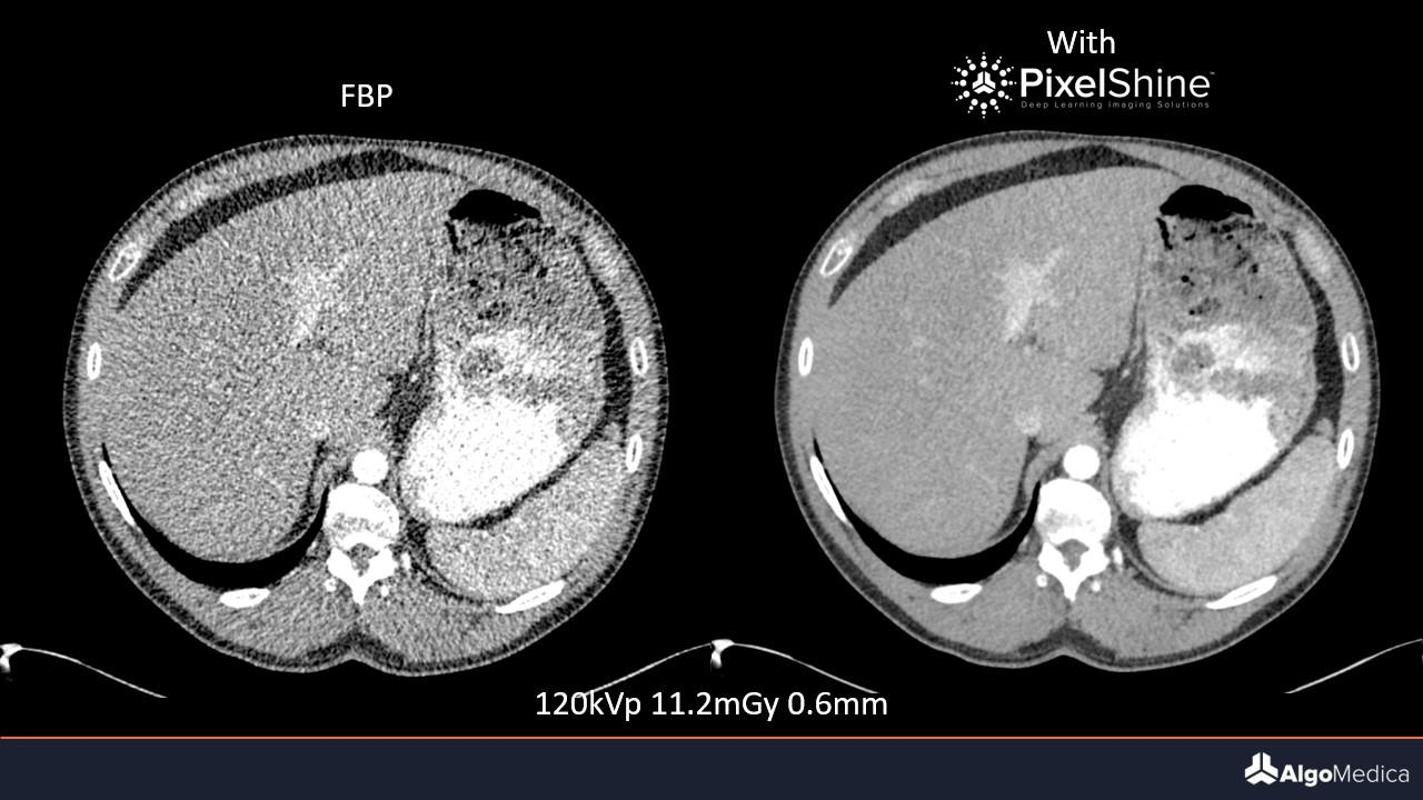 Image of safe CT scans with PixelShine offer noise reductions.