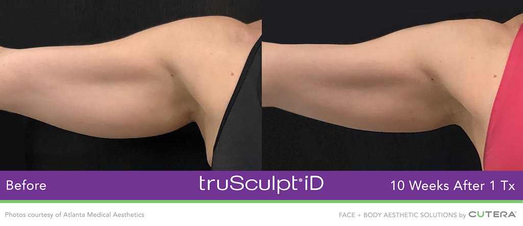 trusculpt-id-atlanta-medical-aesthetics.jpg