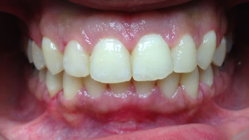 What To Expect From Your Dental Checkups