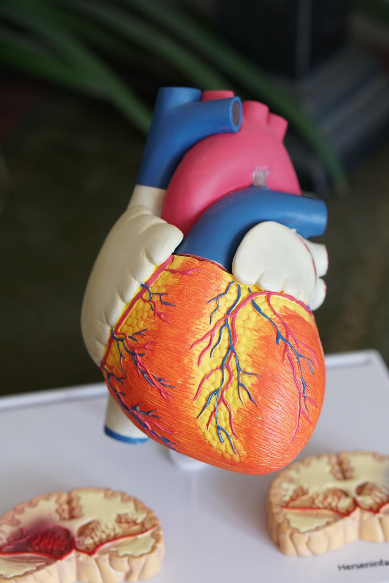 A model of the heart, which our doctors treat every day.
