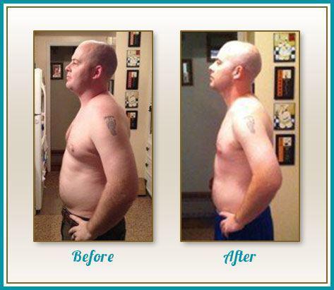 before-after_sanchez.jpg