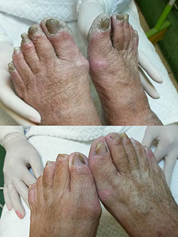 foot-before-after-3.jpg