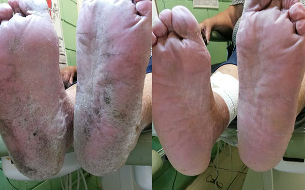 foot-before-after-1.jpg