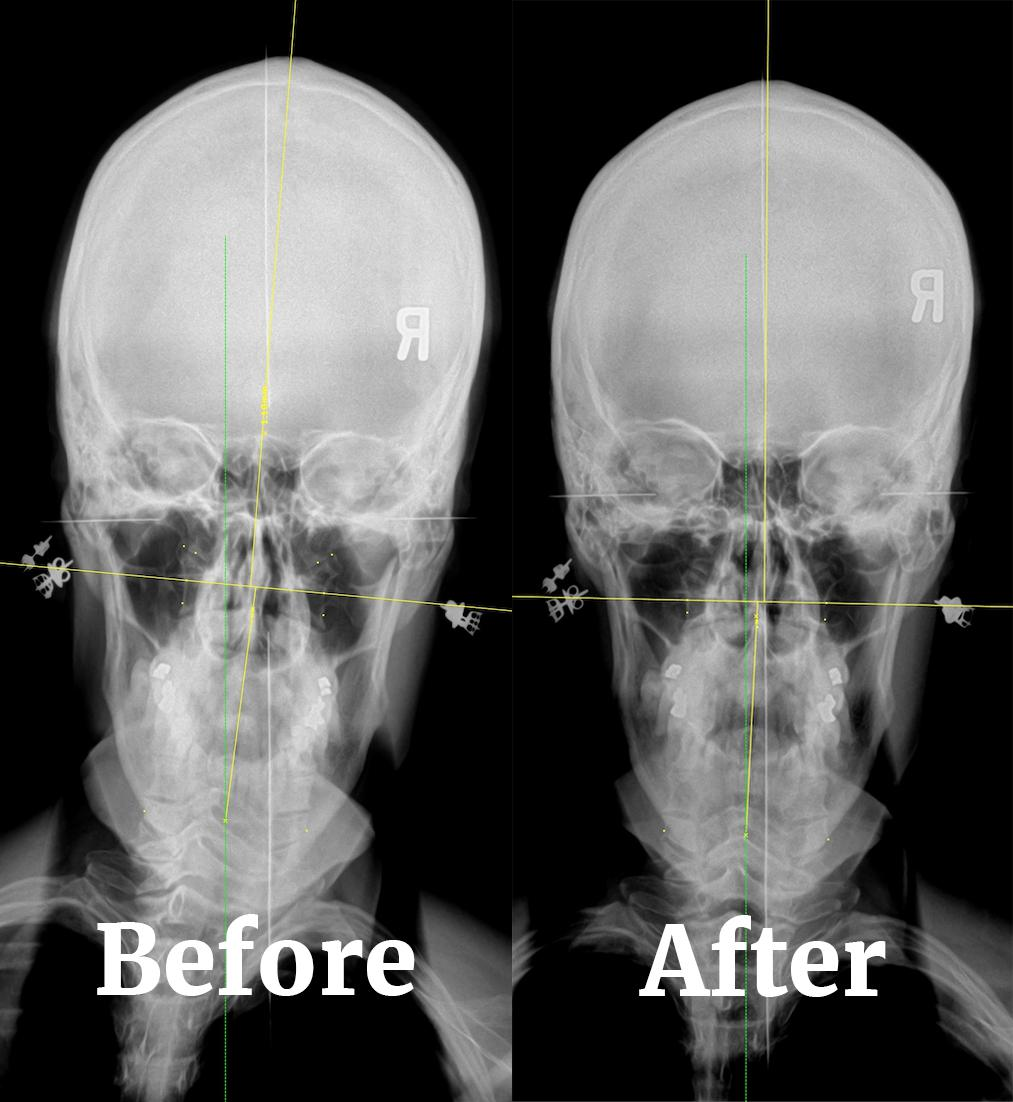NUCCA chiropractic care in Phoenix, AZ can help discover underlying issues throgh x-rays and imaging.