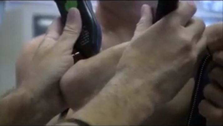 Elbow scar release