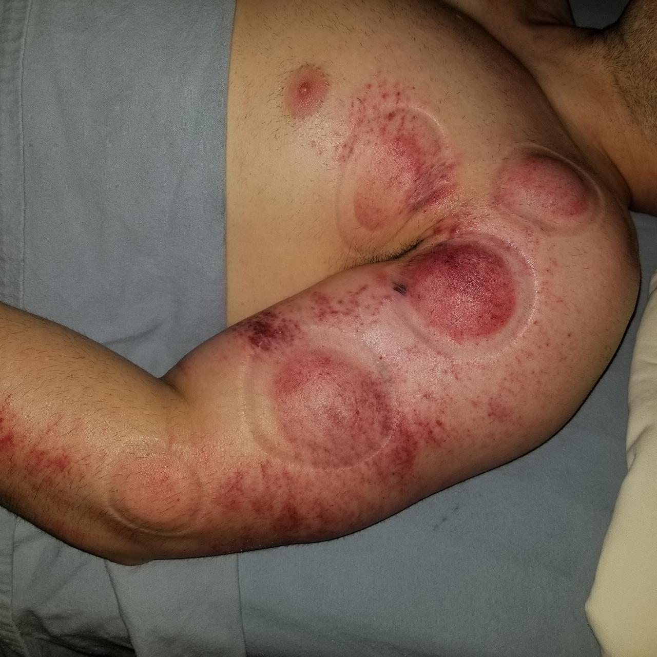 Gua Sha Therapy = (Aka=Scrapping) & Cupping Therapy !